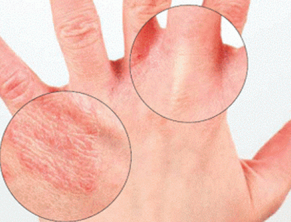 Как определить болезни по рукам
