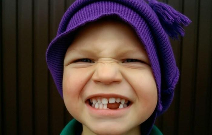 Опасно ли несвоевременное удаление временных зубов?
