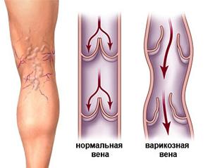 Варикозная болезнь - что такое? Как сохранить здоровье женских ног